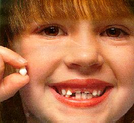 A smiling child with missing teeth